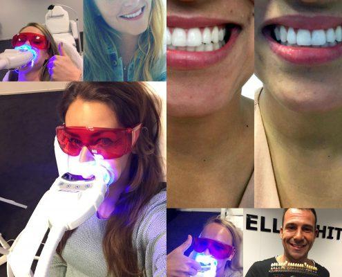 veilig tanden bleken