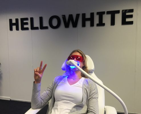 snel wittere tanden