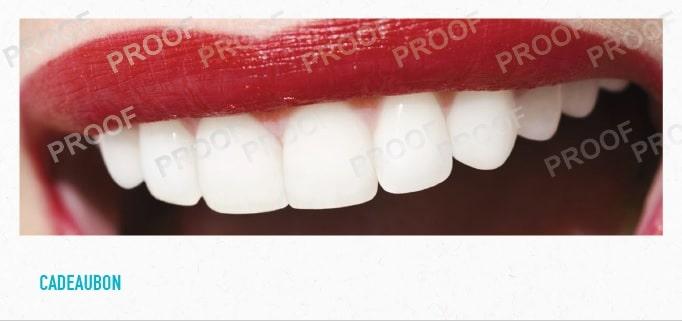 tanden bleken cadeaubon